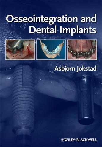 9780813813417 - Osseointegration and dental implants