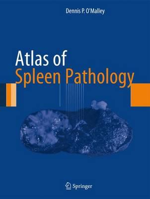 9781461446712 - Atlas of Spleen Pathology