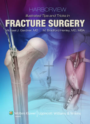 9781469836058 - Harborview Illustrated Tips and Tricks in Fracture Surgery, Inkling