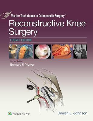 9781496362353 - Master Techniques in Orthopaedic Surgery: Reconstructive Knee Surgery