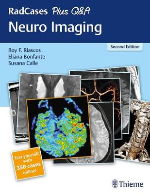 9781626232372 - RadCases Plus Q&A Neuro Imaging